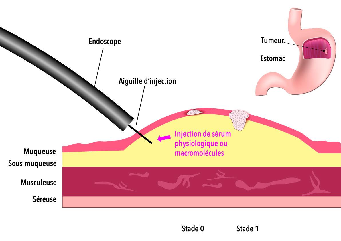 Création d'un espace sous muqueux par injection de sérum physiologique