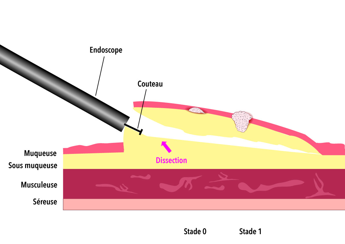Dissection de la sous muqueuse