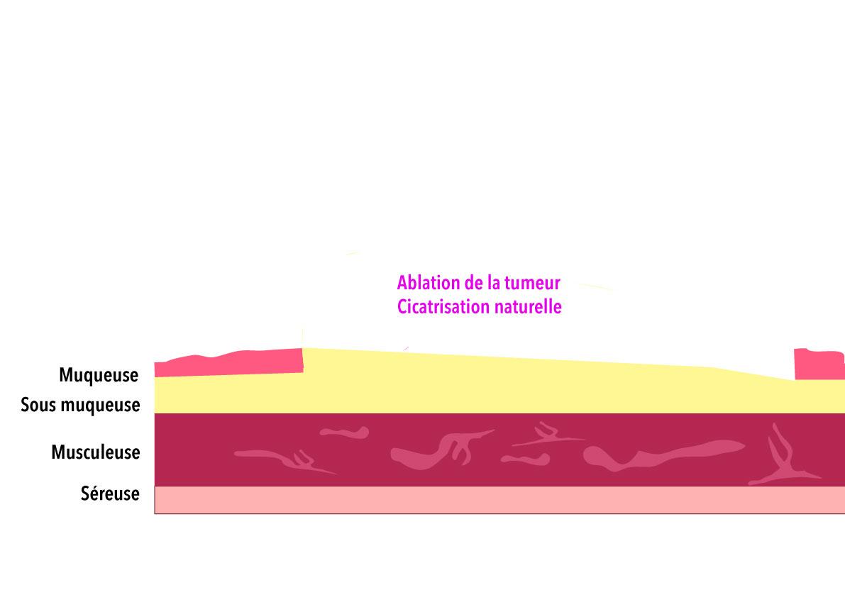 Ablation complète du cancer superficiel
